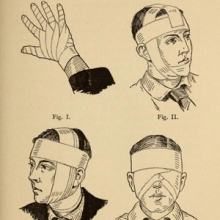 Drawings of various types of head-bandages.